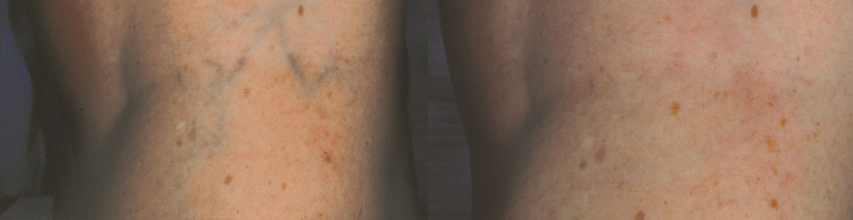 Vascular Before and After