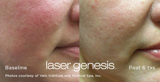 XEO Laser Genesis Before and After