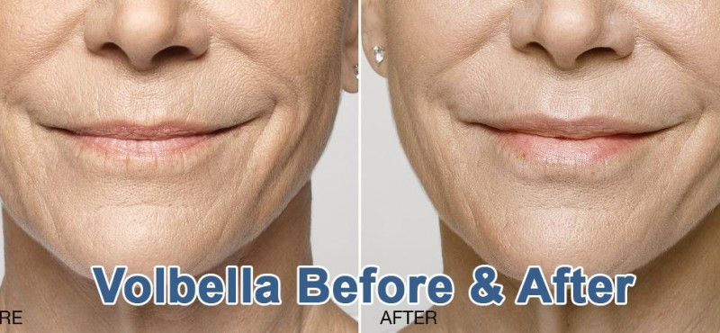 Volbella Before & After