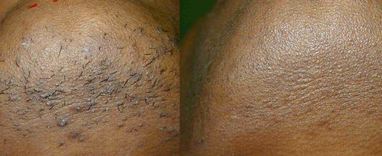 Laser Hair Removal Before and After